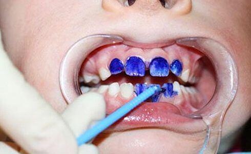 Детская стоматология - 3 | https://complex-dent.com.ua
