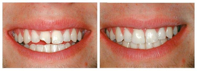 косметическая реставрация зубов