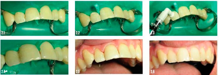 лечение зубов системой icon