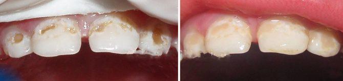 Детская стоматология - 4 | https://complex-dent.com.ua