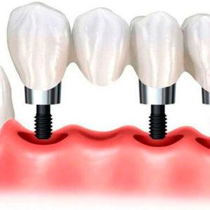 Хотите красивую улыбку? Зубные импланты вернут вам ее | Complex Dent