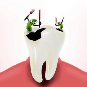 Лечение кариеса | Complex Dent