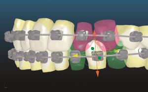 Блог клиники Complex Dent / Заключительный семинар А. В. Тихонова, для врачей ортодонтов - 3 | https://complex-dent.com.ua