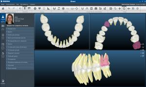 Блог клиники Complex Dent / Заключительный семинар А. В. Тихонова, для врачей ортодонтов - 4 | https://complex-dent.com.ua