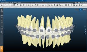 Блог клиники Complex Dent / Заключительный семинар А. В. Тихонова, для врачей ортодонтов - 5 | https://complex-dent.com.ua