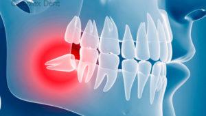 Удаление зуба мудрости | Complex Dent