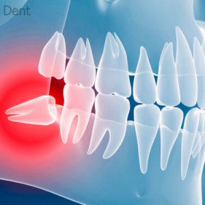 Удаление зуба мудрости   Complex Dent