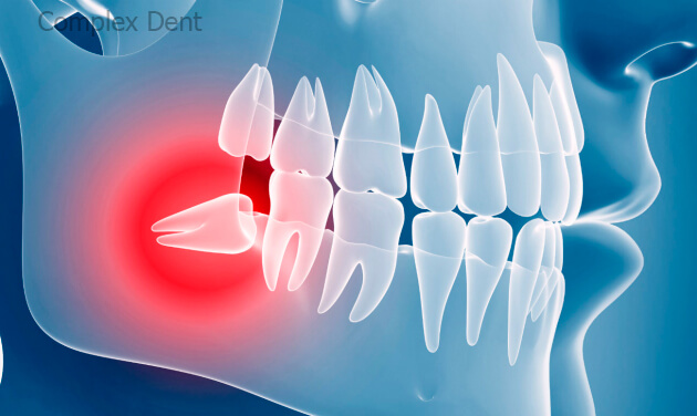 Блог клиники Complex Dent - 4 | https://complex-dent.com.ua