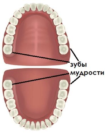 Удаление зуба мудрости - 1 | Complex Dent