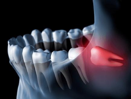 Удаление зуба мудрости - 2 | Complex Dent