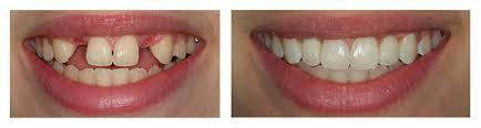 Хотите красивую улыбку? Зубные импланты вернут вам ее - 1 | Complex Dent