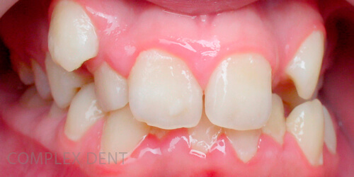 | Complex DentЧто такое брекеты и как они работают - 1 | Complex Dent