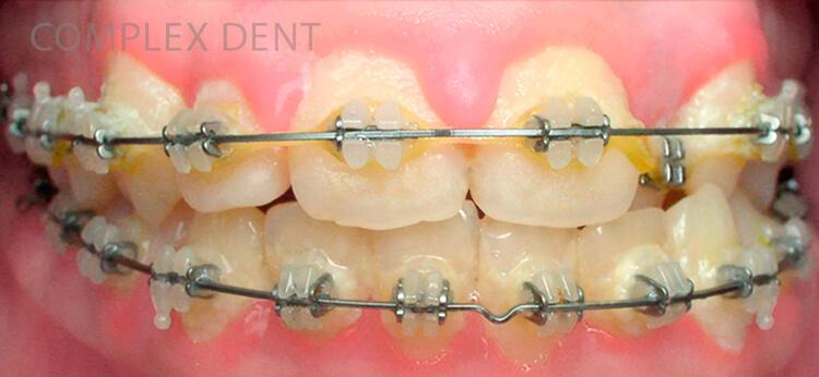 Что такое брекеты и как они работают - 7 | Complex Dent