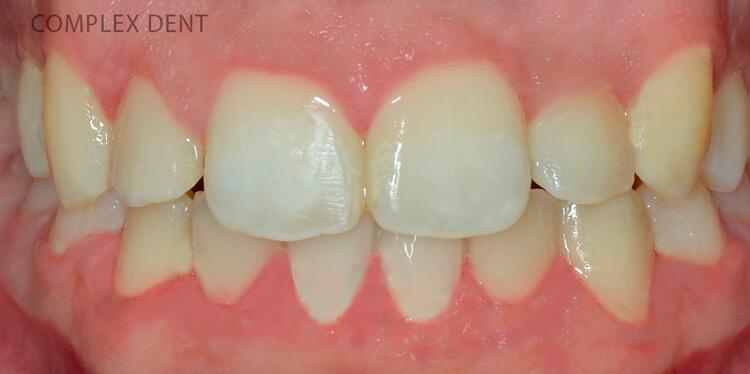 Что такое брекеты и как они работают - 8 | Complex Dent