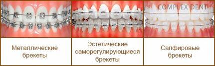 Что такое брекеты и как они работают - 3 | Complex Dent