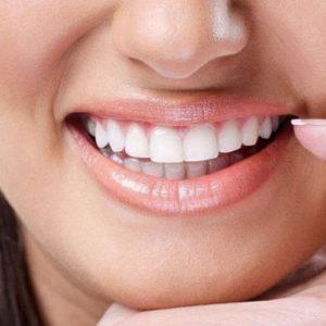 Преимущества зубных виниров | Complex Dent