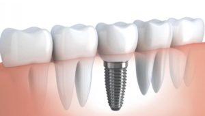 Изготовление съемного протеза на имплантах | Complex Dent