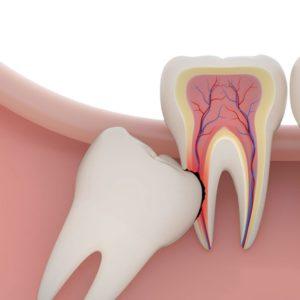 Безболезненное удаление зубного нерва | Complex Dent