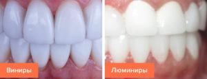 Современные технологии в эстетической стоматологии - 2   Complex Dent