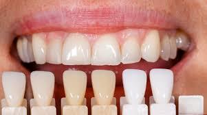 Современные технологии в эстетической стоматологии - 1   Complex Dent