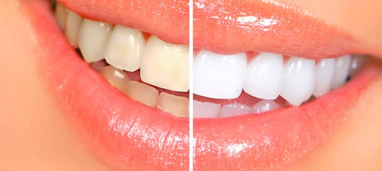 Блог клиники Complex Dent / Современные технологии в эстетической стоматологии | https://complex-dent.com.ua