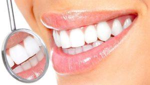 Как уменьшить чувствительность десен | Complex Dent