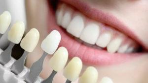 Современные технологии в эстетической стоматологии | Complex Dent