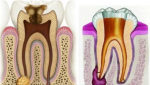 Периодонтит | Complex Dent
