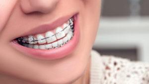 Керамические брекеты | Complex Dent