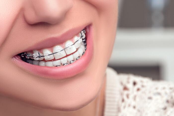 Блог клиники Complex Dent / Керамические брекеты | https://complex-dent.com.ua