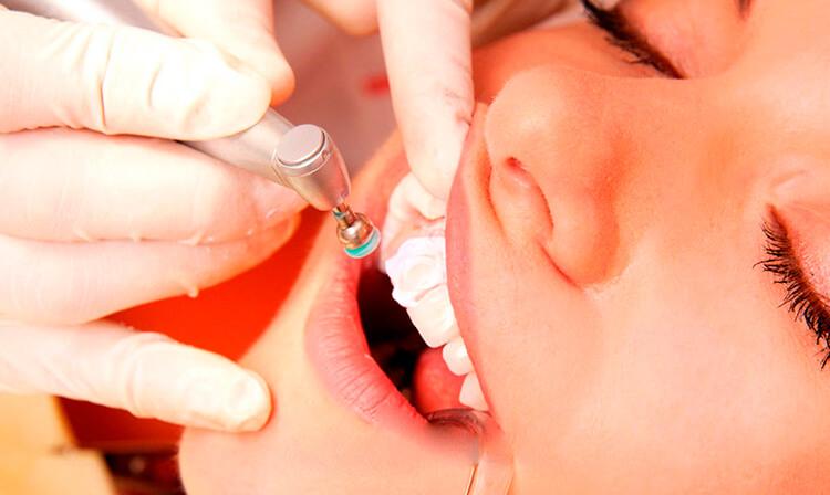 Фото Профилактическая стоматология