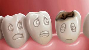 Как предотвратить появление кариеса? | Complex Dent
