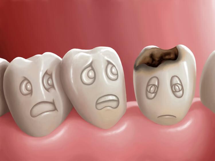Блог клиники Complex Dent / Как предотвратить появление кариеса? | https://complex-dent.com.ua