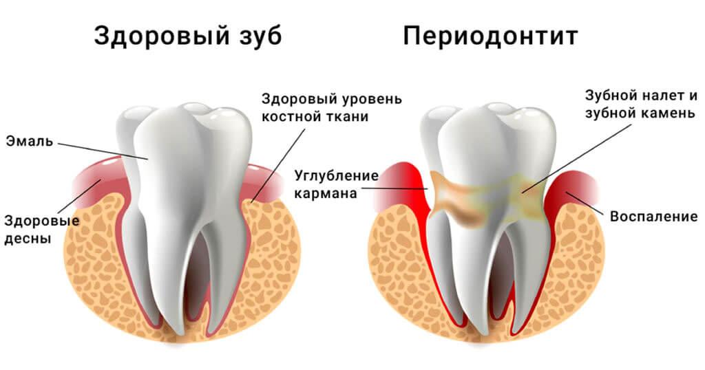Периодонтит - 1 | Complex Dent