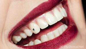 Скайсы - современное украшение для зубов! | Complex Dent