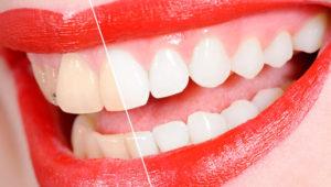 Вред и польза отбеливающей пасты для зубов | Complex Dent