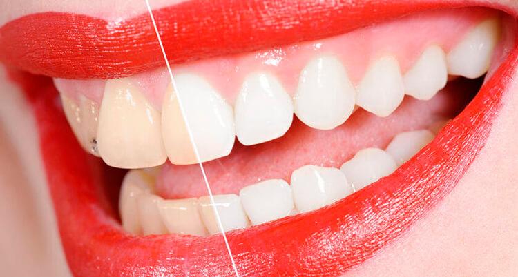 Блог клиники Complex Dent / Вред и польза отбеливающей пасты для зубов | https://complex-dent.com.ua