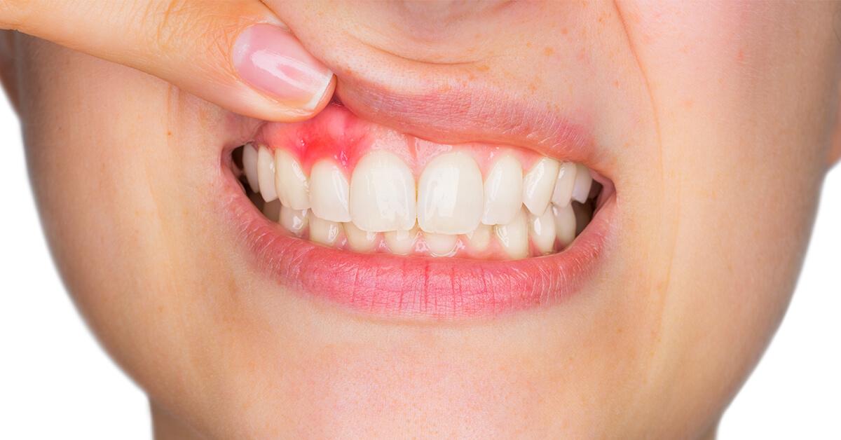 Блог клиники Complex Dent / Помощь при гингивите! Готовим средство самостоятельно. | https://complex-dent.com.ua