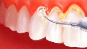 Удаление зубного камня ультразвуком! | Complex Dent