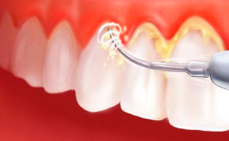 Блог клиники Complex Dent / Удаление зубного камня ультразвуком! | https://complex-dent.com.ua