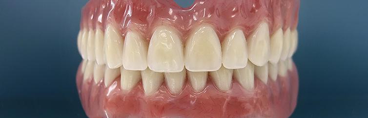 Нейлоновые протезы - польза или вред! - 1 | Complex Dent