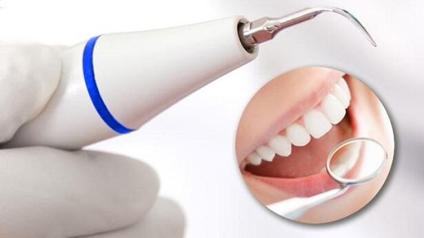 Блог клиники Complex Dent / Удаление зубного камня в стоматологии   https://complex-dent.com.ua