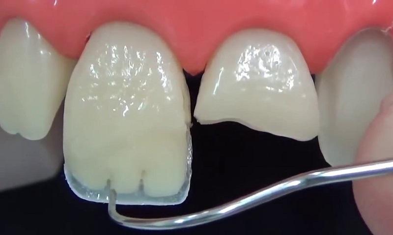 Процедура наращивания зубов - 1 | Complex Dent