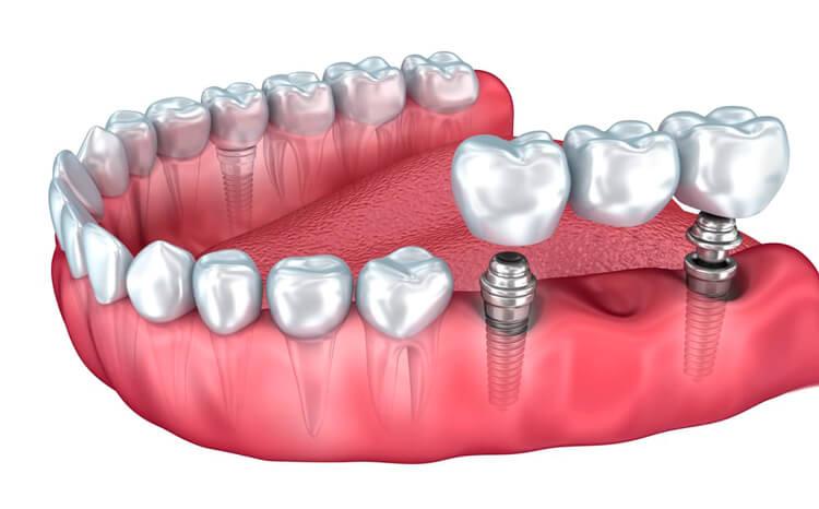 Изготовление съемного протеза на имплантах - 1 | Complex Dent