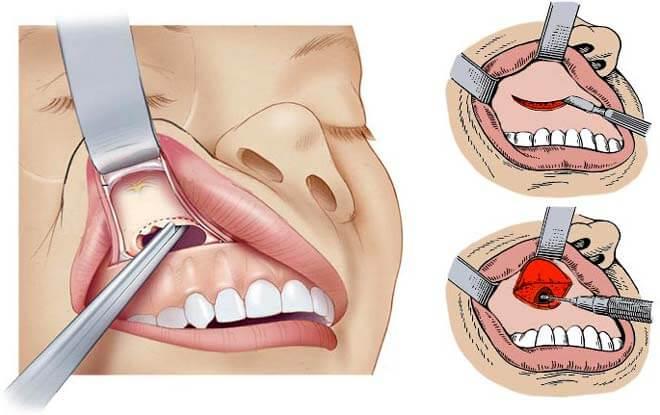 Удаление ретенционной кисты - 1 | Complex Dent