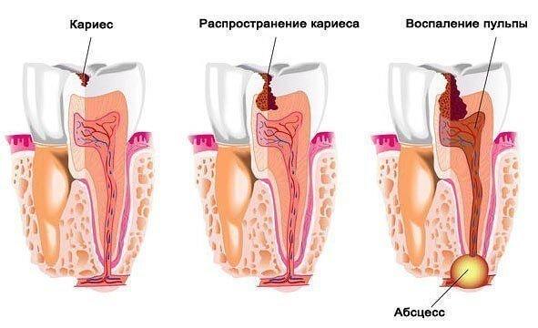 Лечение и профилактика кариеса - 2 | Complex Dent