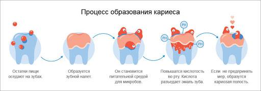 Лечение и профилактика кариеса - 1 | Complex Dent