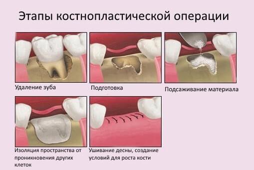 Костная пластика в стоматологии - 1 | Complex Dent