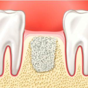 Костная пластика в стоматологии | Complex Dent