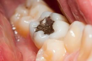 Пломбирование зубов и виды пломб - 1 | Complex Dent